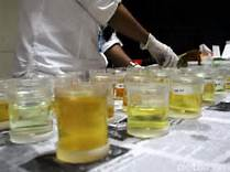 Hasil tes urine