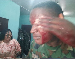 A military teacher escaped being butchered to death in Port Harcourt