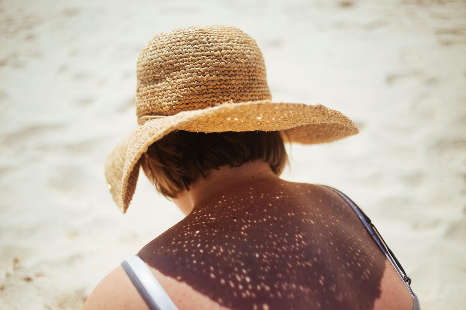 sun-solares366-protecção-solar-skin-pele-cancro