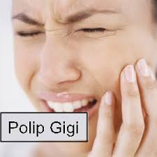 Pengobatan Untuk Sembuhkan Polip Gigi