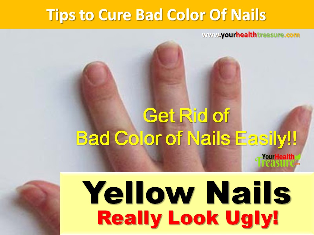 12 Ways to Get Rid of Yellow Nails Naturally At Home - Your Health ...