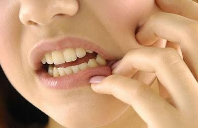 solusi sakit gigi