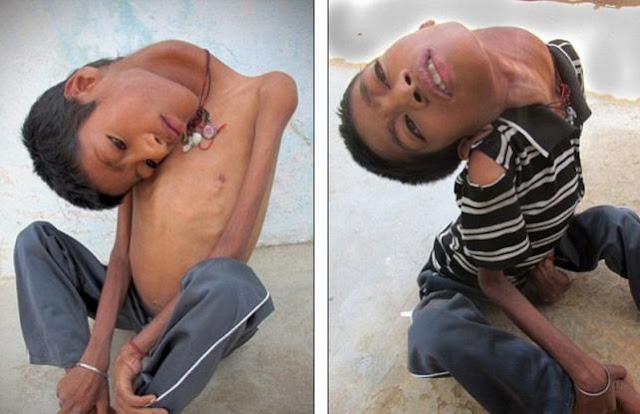 Το 13χρονο αγόρι, με το κεφάλι που κρέμεται (Photos)