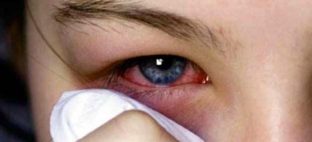 9440046451 Los signos más comunes que observamos por sobre-uso de lentes de contacto  incluyen • Edema corneal • Puntilleo corneal • Estrías • Microquistes