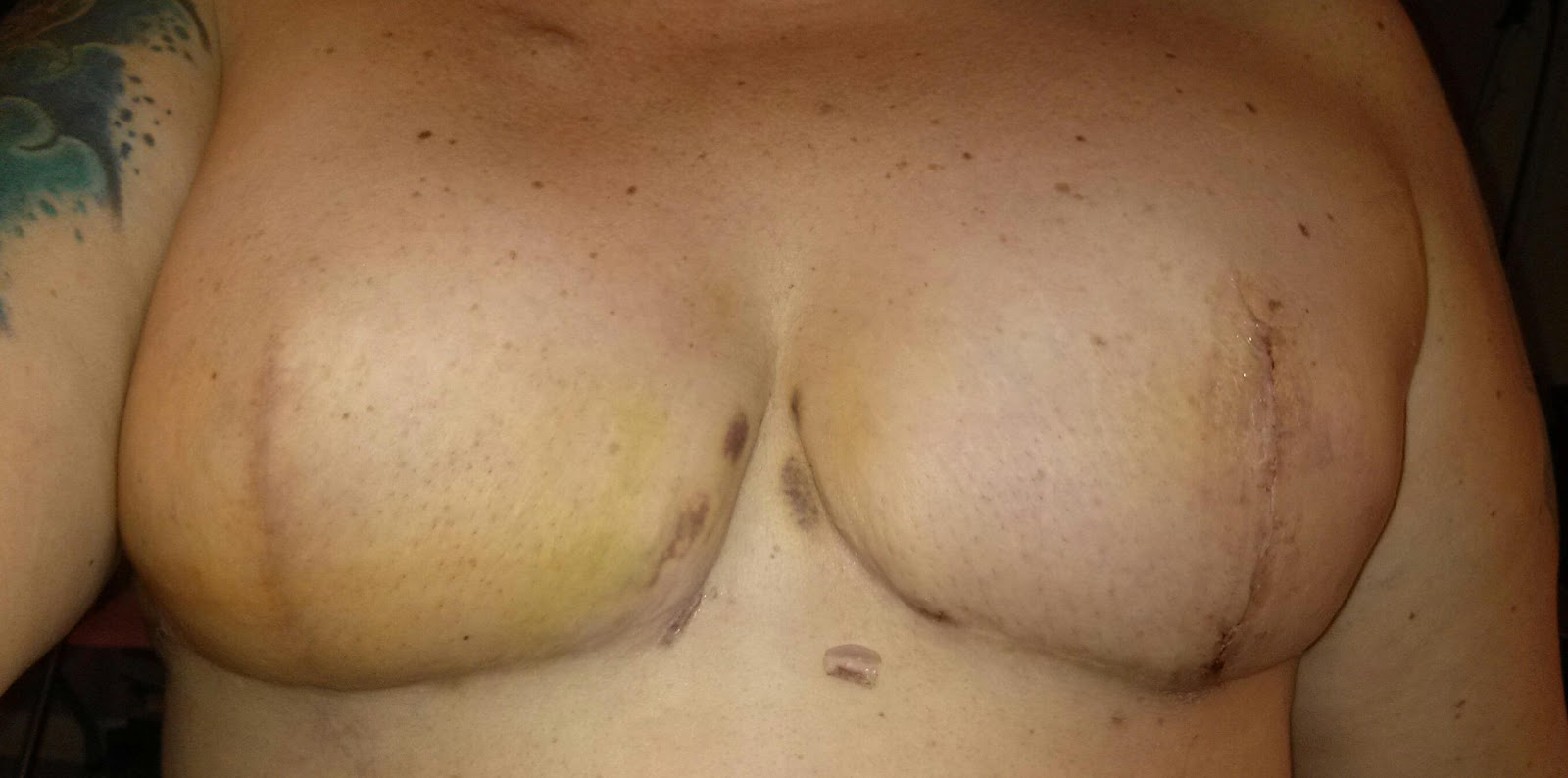 Swelling Boobs 55