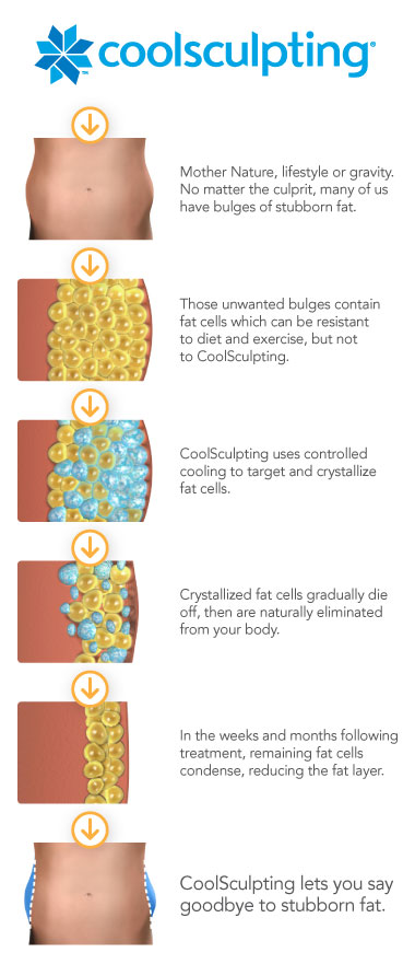 In the name of perfection: Intolerable pain after CoolSculpting