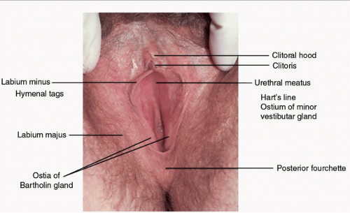 Having pain, swelling, irritation, or burning in your vulvar region
