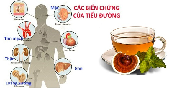 Nấm linh chi làm giảm các biến chứng từ bệnh tiểu đường.