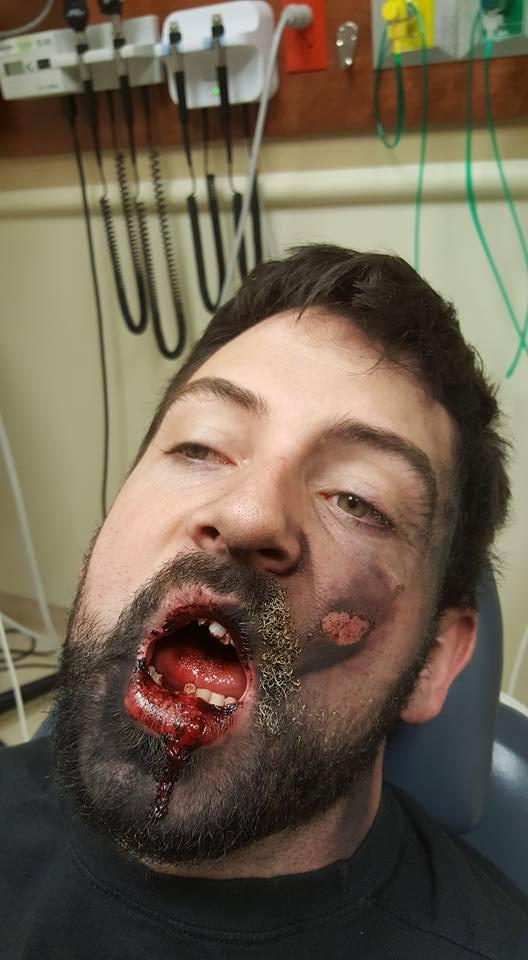 Lelaki Hilang 7 Batang Gigi Akibat Vape Meletup