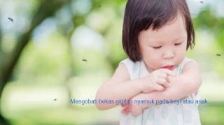 Mengobati dan Menghilangkan Bekas Gigitan Nyamuk Pada Bayi