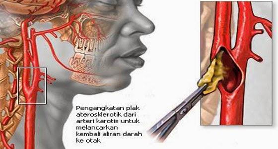 Penyakit Stroke Berat