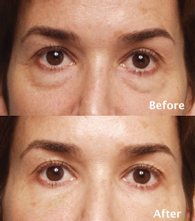 Love Her Face Restylane Examples