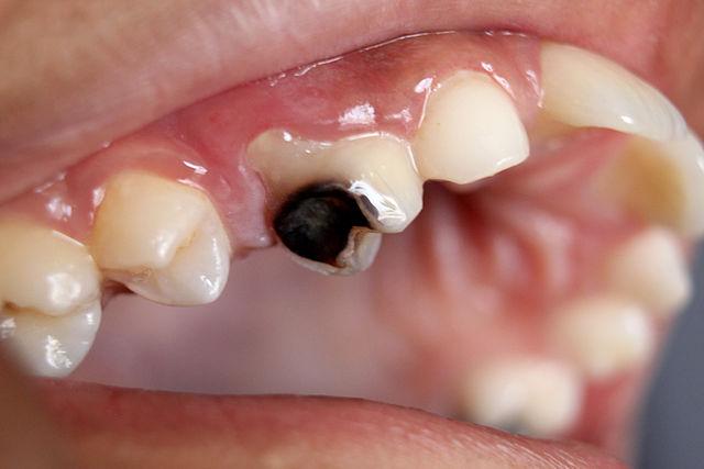 cara menghilangkan bau mulut akibat gigi berlubang