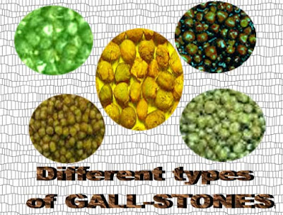 gall stone and ayurvedic treatment