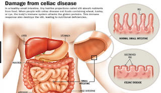 Coeliac disease is a common digestive condition