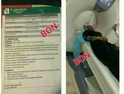 Mercy-Aigbe-Gentry-undergoing-a-CT-scan