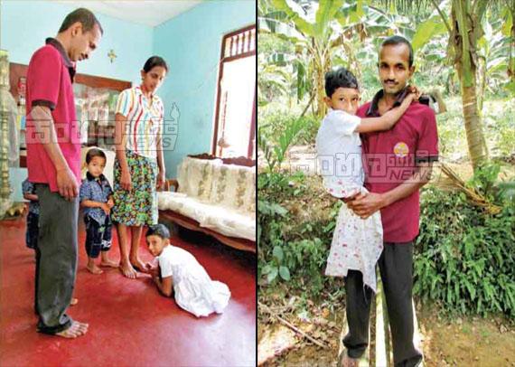Sad Gossip story From Sri lanka - Girl with congenital deformity sits for scholarship exam - Photos