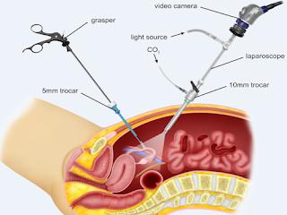 laparoskopi-www.healthnote25.com