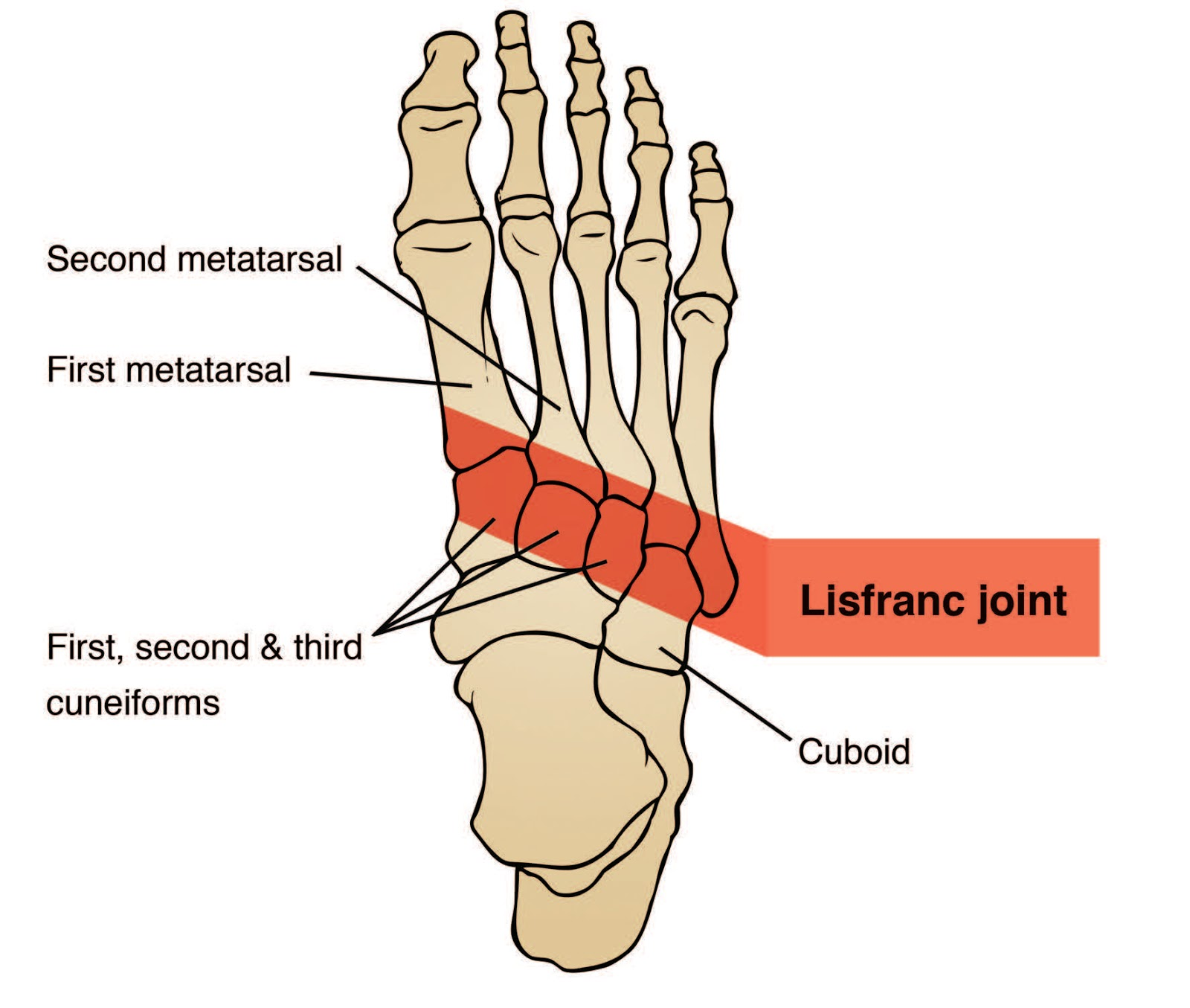 Lisfranc Injuries   An Uncommon Midfoot Injury