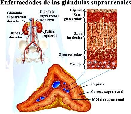 Enfermedades de las glándulas suprarrenales