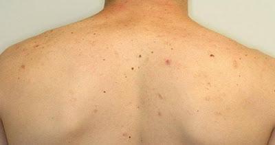 Foto Obat alami menyembuhkan gatal bintik bintik jerawat di punggung