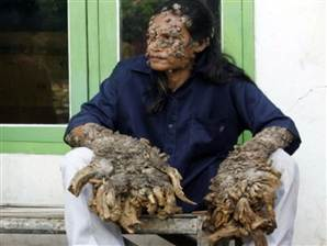 Indonesian known as 'the tree man' due to disease dies