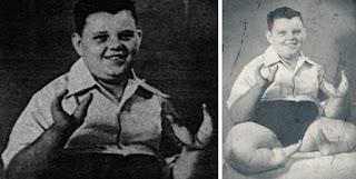 Το αγόρι-αστακός και οι δαγκάνες που βάφτηκαν με αίμα
