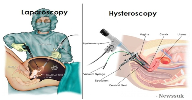 difference between laparoscopy and hysteroscopy