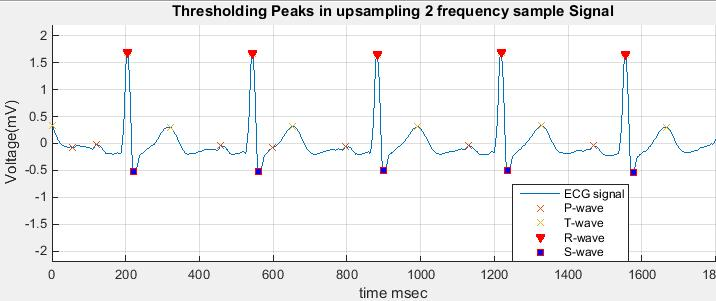 Biomedical Signal and Image Processing projects using Matlab