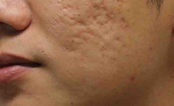 علاج حفر الوجه نهائيا