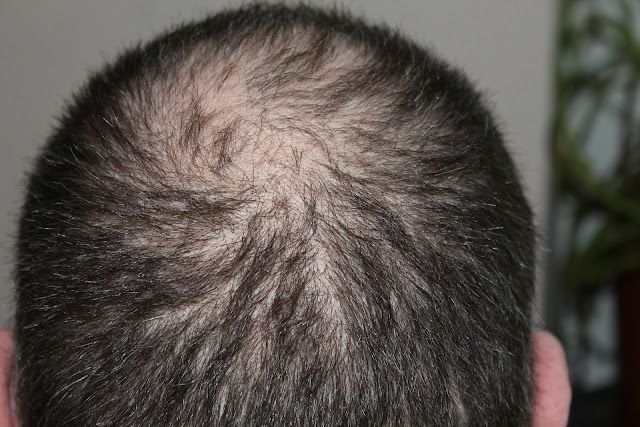 hair loss a disease? man hairloss www.ipagenews.com