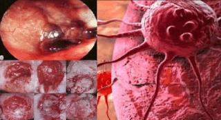 Cara Mencegah Kanker Secara Alami