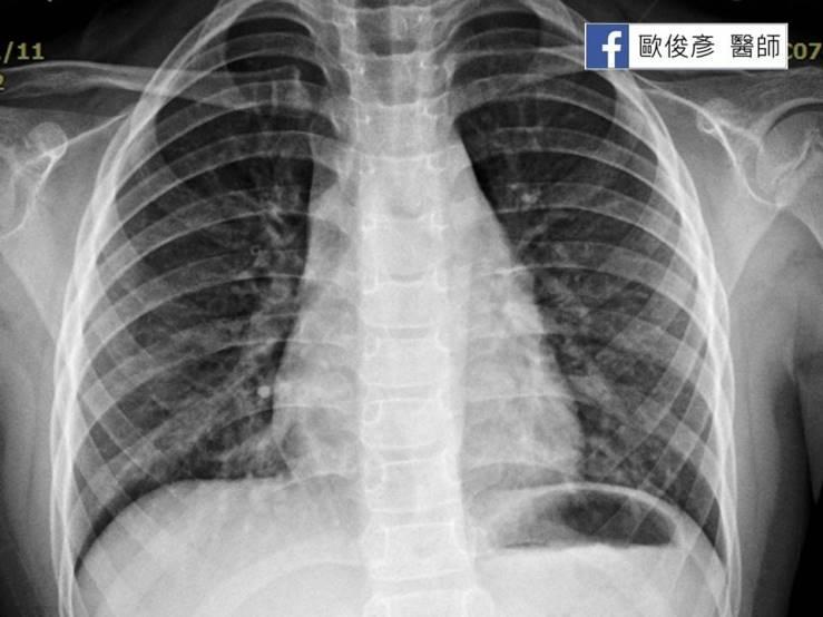 可能致命的肺炎鏈球菌、嗜血桿菌肺炎 - 照護線上