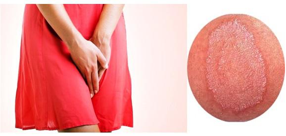 obat gatal gatal karena jamur di sekitar kemaluan wanita