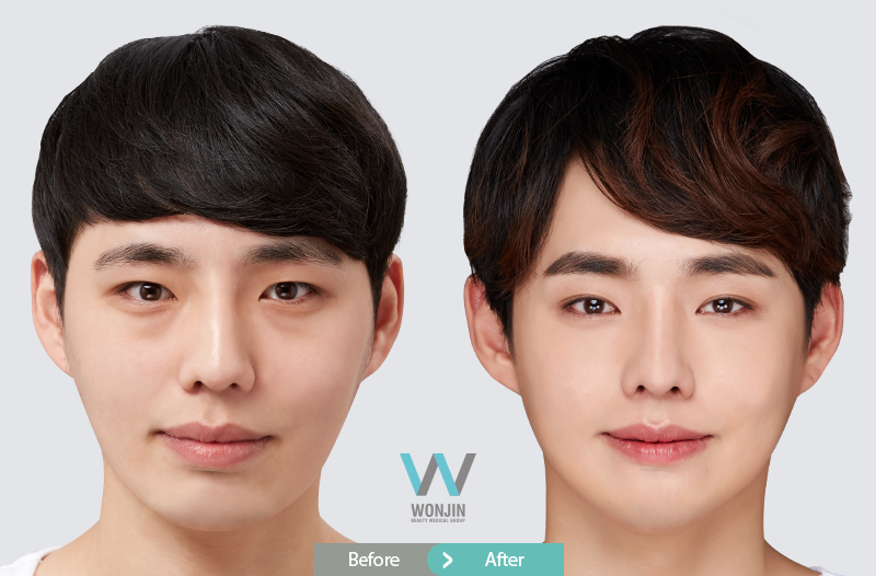 Male plastic surgery review, before and after