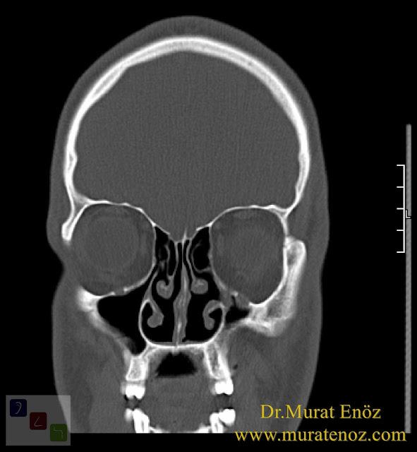 Boş burun sendromu tanımı - Boş burun sendromu belirtileri - Boş burun sendromu tedavisi - Boş burun sendromu tedavisinde Hyaluronik Asit dolgusu - Burun eti dolgusu - Treatment of Empty nose syndrome with hyaluronic acid filler - Boş burun - Geniş burun boşluğu sendromu - Burun eti büyütülmesi - Empty Nose Syndrome (ENS)