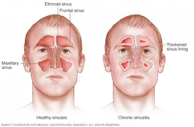 Cara Mengobati Sinusitis Secara Alami