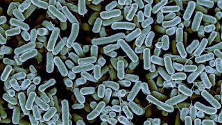 archaebacteria dan eubacteria termasuk organisme prokariotik karena