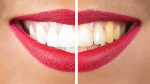 A Dentist Friend Told Me How Whiten Your Yellow Teeth in less than 2 Minutes