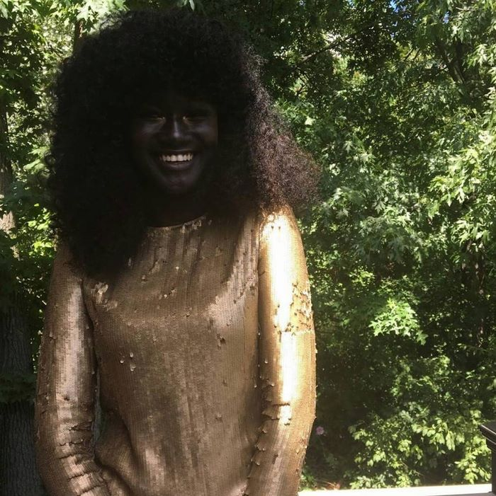"""And now even online sometimes, people will make comments"" - Teen Bullied For Her Incredibly Dark Skin Color Becomes A Model, Takes The Internet By Storm"