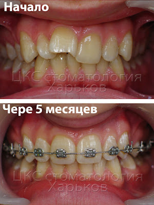 динамичные ортодонтические перемещения зубов