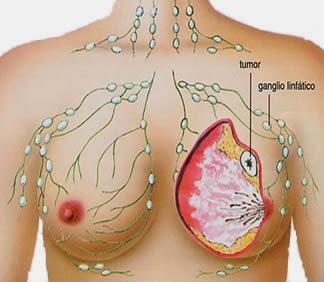 Gejala Awal Penyakit Kanker Payudara Dan Pengobatannya