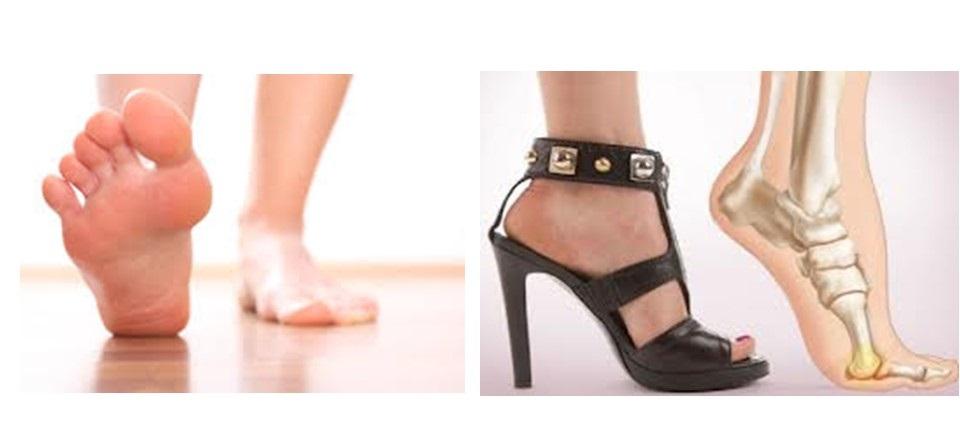 護足聯盟: 蹠痛,容易被誤認為足底筋膜炎的痛(上)