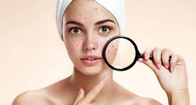 Freckles symptoms of serious skin diseases