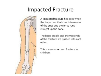 Impacted fracture definition,Signs and Symptoms of fracture,Causes of fracture,