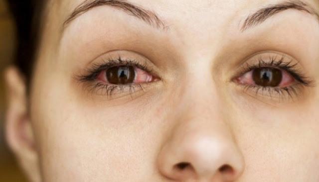 Enam Perkara Berikut Dapat Menyebabkan Mata Menjadi Merah