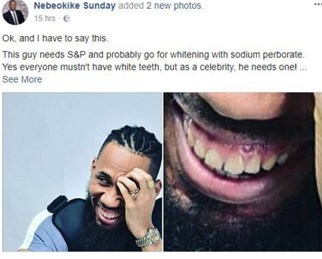 Lmao! Dentist Calls Out Phyno Over His Set Of Teeth