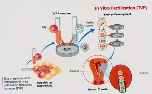 Sukses Bayi Tabung (Suplemen Untuk IVF)