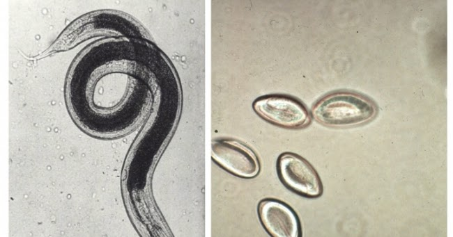 Pinworm mesaj pentru copii Pinworm Dangers papillomaviridae history