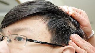 Băn khoăn 20 tuổi đã bạc tóc sẽ yếu sinh lý?